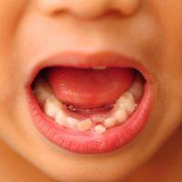 leczenie zębów mlecznych warszawa