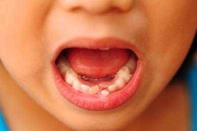 Czy zęby mleczne trzeba leczyć?
