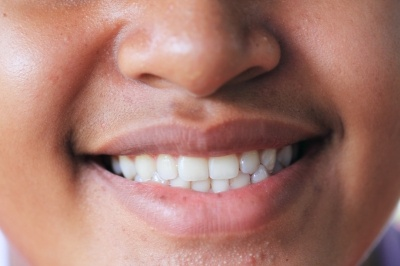 Najczęstsze błędy popełniane przy wybielaniu zębów