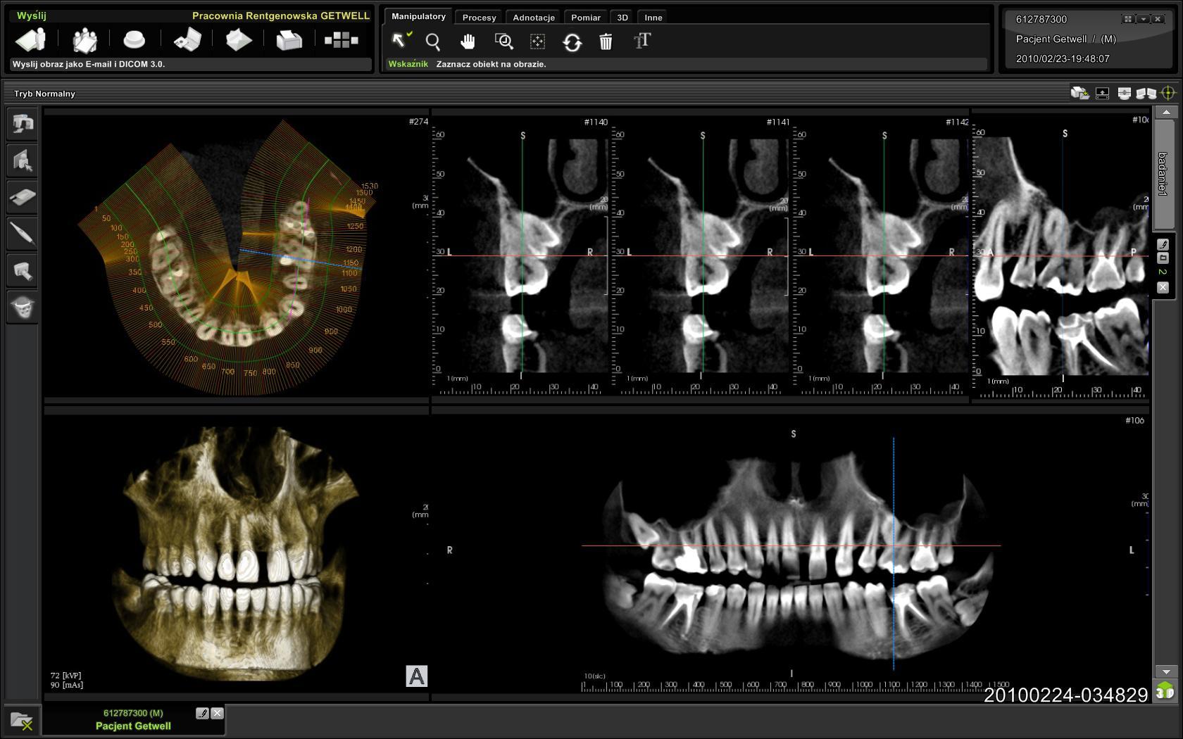 tomografia żoliborz