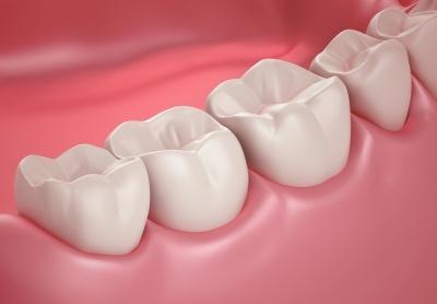 Uzupełnienia protetyczne na implantach