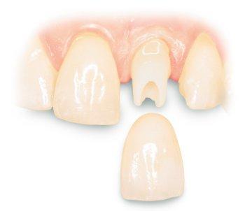 Kiedy stosuje się korony na zęby?