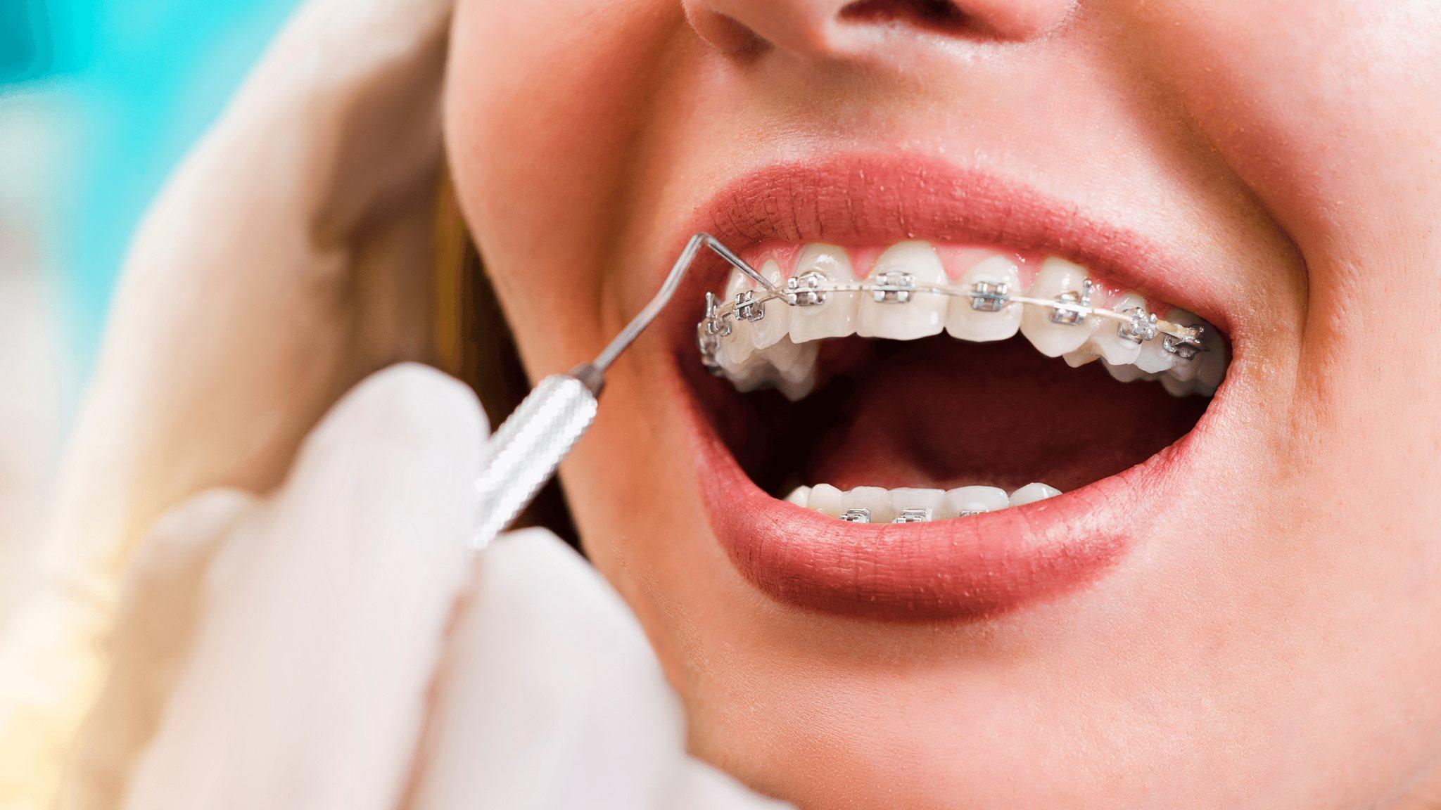 aparat ortodontyczny jak długo nosić